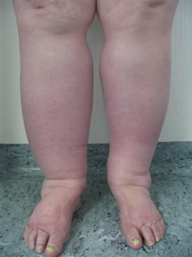 Bilateral lymphedema of the lower limbs
